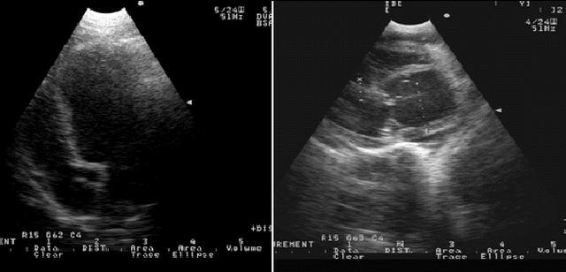Снимок УЗИ сердца, положене 3