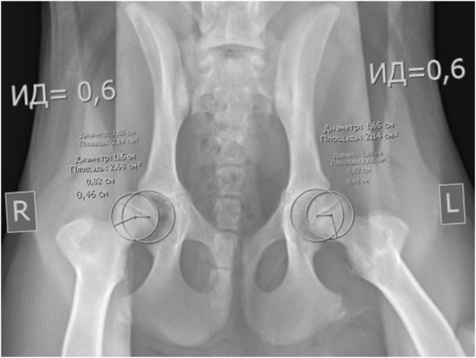 Рентгенограмма ТБС с использованием дистрактора, расчёт индекса дистракции (ИД)